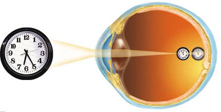 Рисунок 2б. Близорукость глаза.